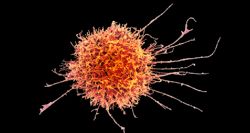 a natural killer cell