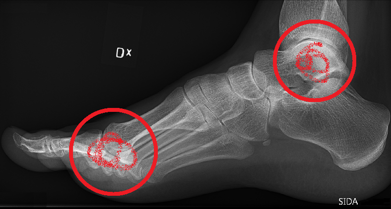 x-ray of arthritic ankle and foot